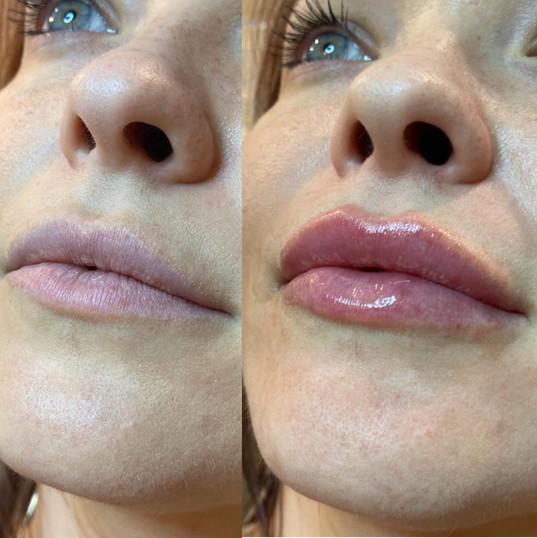 lip-filler-by-kristina-9.jpg