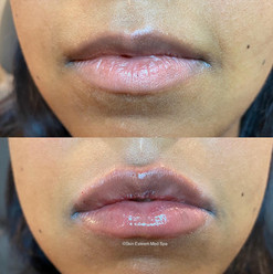 lip-filler-by-kristina-7.jpg