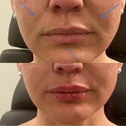 lip-filler-10.jpg