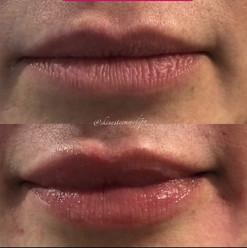 lip-filler-4.jpg