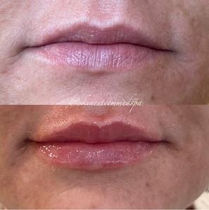 lip-filler-8.jpg