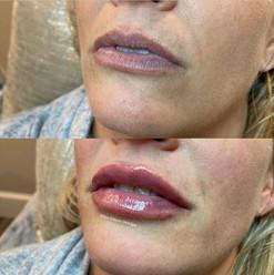 lip-filler-by-kristina-11.jpg