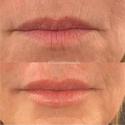 lip-filler-16.jpg
