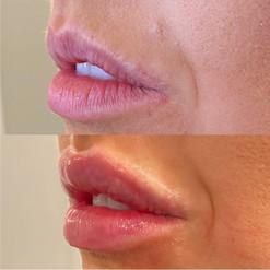 lip-filler-11.jpg