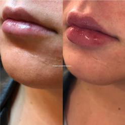 lip-filler-24.jpg