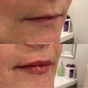 lip-filler-18.jpg