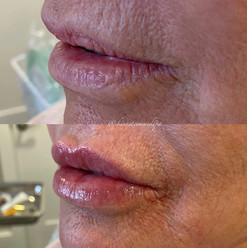 lip-filler-5.jpg