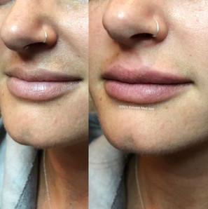 lip-filler-by-kristina.jpg
