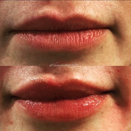 lip-filler-26.jpg
