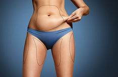 coolsculpting-areas-1024x672.jpg