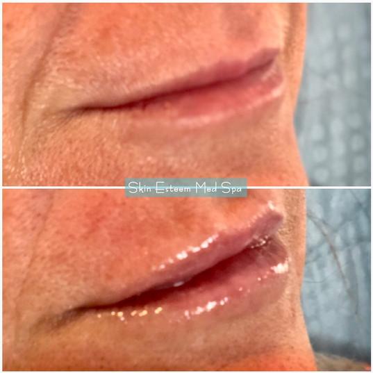 lip-filler-31.jpg