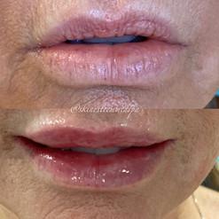 lip-filler-6.jpg