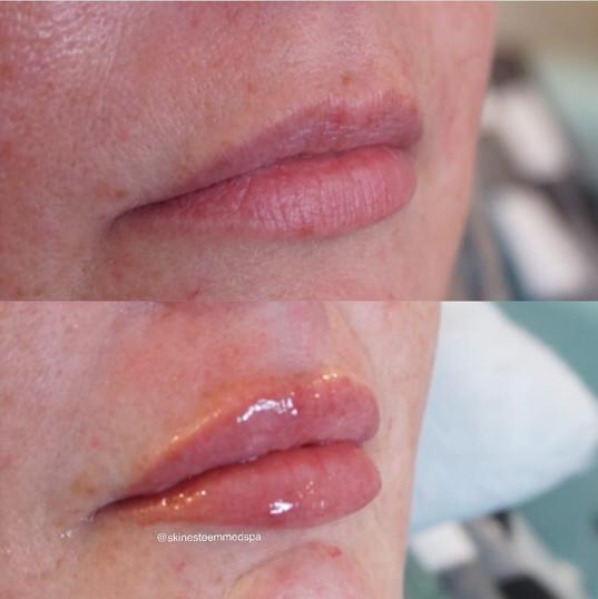 lip-filler-23.jpg