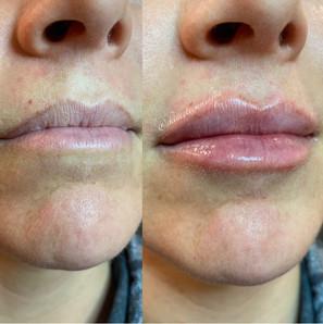 lip-filler-by-kristina-5.jpg