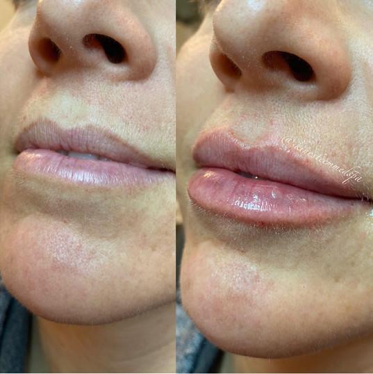 lip-filler-by-kristina-3.jpg