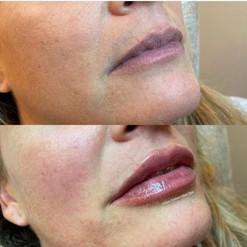 lip-filler-by-kristina-10.jpg