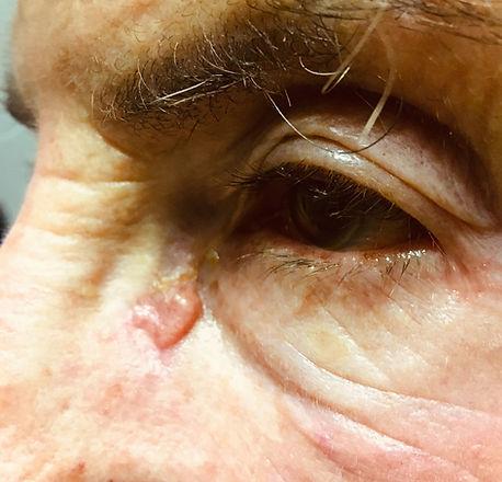 eyelid bcc medial.jpg