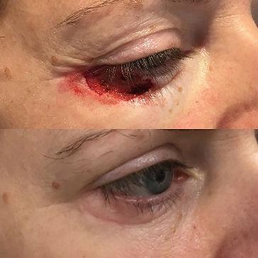 eyelid%20cancer%20repair_edited.jpg