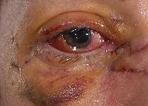 eyelid trauma close.jpg