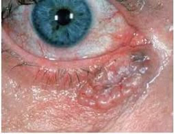 Eyelid Basal Cell Carcinoma - diagnosis & treatment
