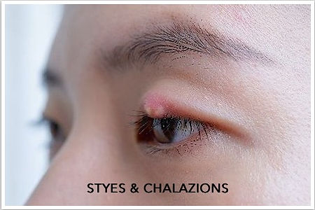 chalazion and stye.jpg