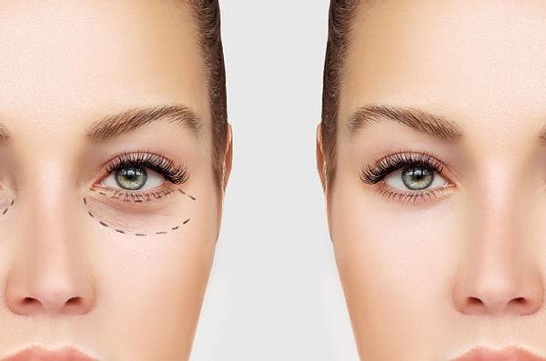 transconjunctival blepharoplasty eyelid.