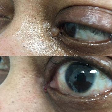 eyelid%20hidrocystoma_edited.jpg