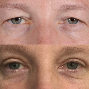 How to get cosmetic eyelid surgery on the NHS