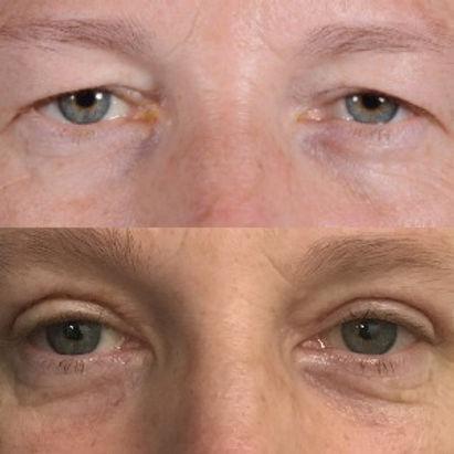 blepharoplasty before after.jpg