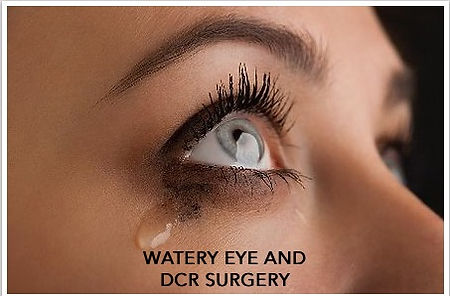 watery eye and dcr surgery.jpg