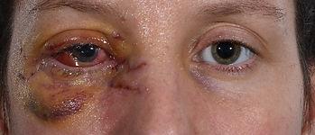 eyelid trauma.jpg