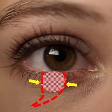 Eyelid cancer surgery london.jpg