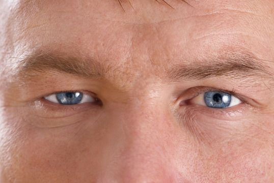 Ptosis - Droopy eyelid surgery