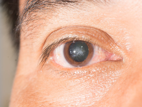 Cataract surgery, what is cataract and what to expect