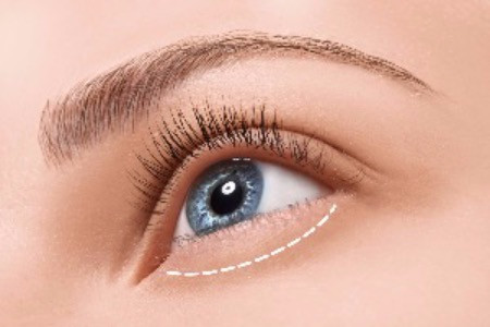 Cosmetic eyelid surgery and blepharoplasty