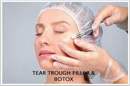 botox and filler.jpg