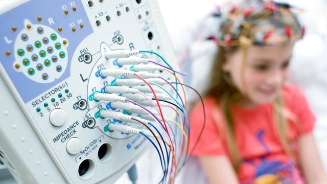 Electroencefalograma Digital Prolongado