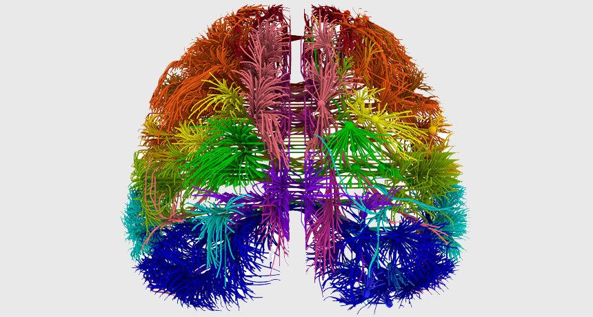 Mapeo Cerebral