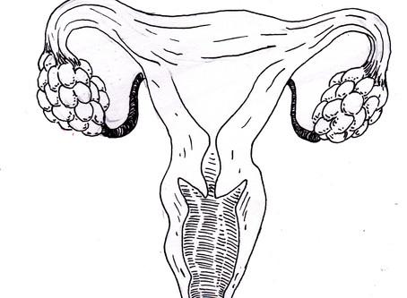 Polycystic Ovary Syndrome - Ace's Story
