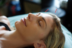 c3 Acupuncture Mission Viejo