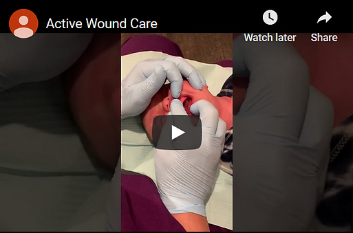 Active Wound Care.png