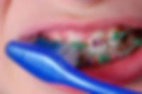 braces_brushing_sm.jpg
