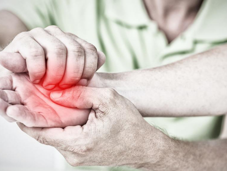 3 Simple Ways to Manage Hand Osteoarthritis