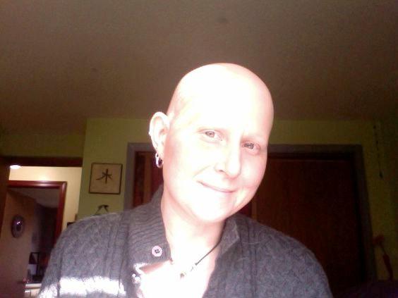 Bald it is.
