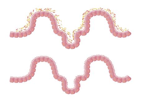 Intestino Irritable y Disbiosis Intestinal: Candidiasis, Parasitosis y SIBO, la raíz de la epidemia