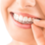 Invisalign-Hero-no-Background.png