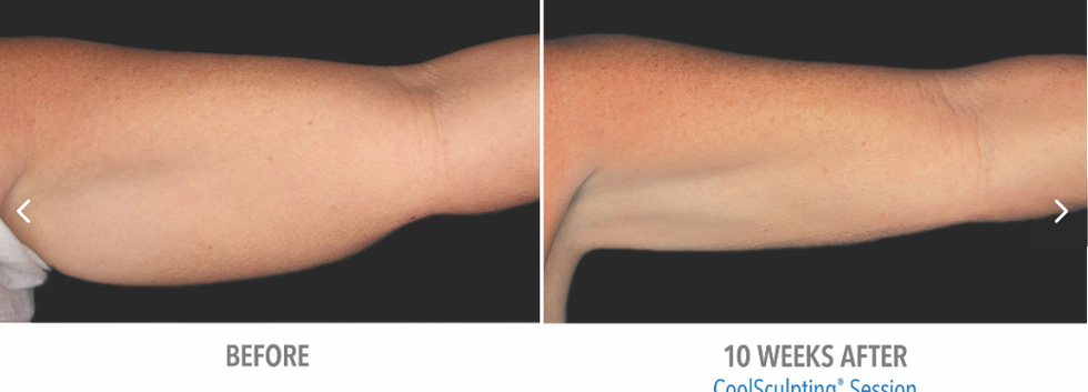CoolSculpting Before and After Upper Arms