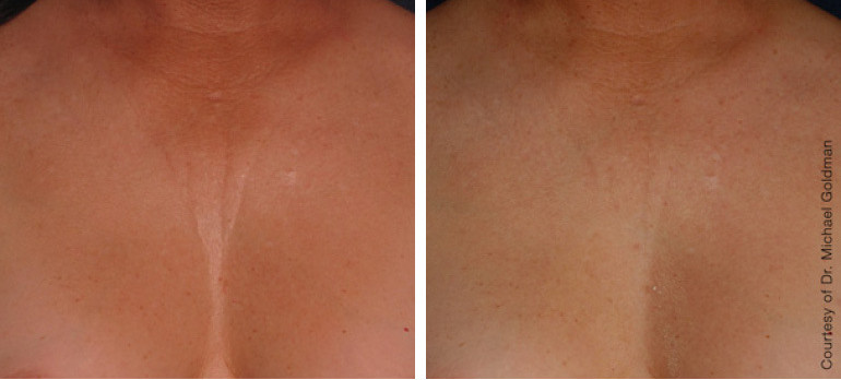 ultherapy-0007-0093ah_180day_1tx_chest_g