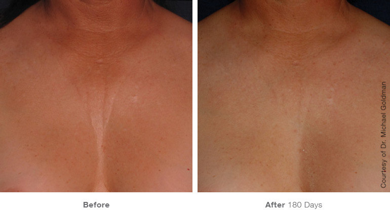 Ultherapy before and after chest