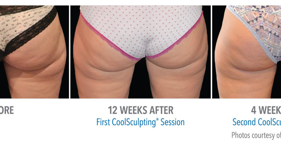 CoolSculpting Banana Rolls Before and After